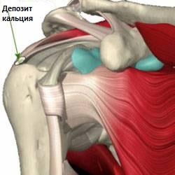 Кальцинирующий тендинит плечевого сустава лучезапястный сустав повязка
