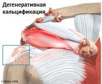 Кальцинирующий тендинит плеча