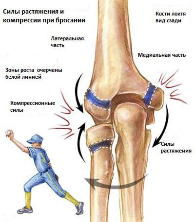 Сильно болит локоть при тендините суставы к какому врачу обратиться
