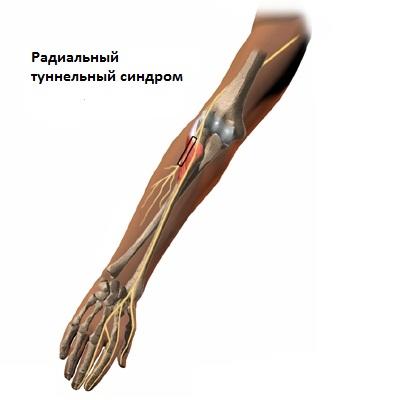 Дикуль нейропатия локтевого сустава болят суставы и сердце