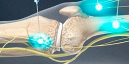 Изображение - Малоинвазивная терапия при заболевании суставов maloinv_kolen